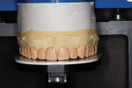 Figure 6 The diagnostic wax-up was done without preparing the teeth on the casts to visualize the additive nature of the restorations.