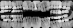 Figure 12 Postoperative full-mouth radiographs.