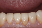 Figure 11 Severely worn lower anterior teeth were restored and showed excellent tissue health.