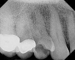 Figure 1 Pre-treatment digital periapical radiograph of site No. 5 confirming a vertical root fracture.
