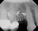 Figure 12 Immediate postoperative digital periapical radiograph.