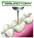 SS White Dental's Fissurotomy Bur