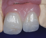 A screw-retained implant fixed partial denture showing ideal implant placement for lingual screw access.
