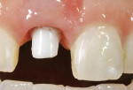 Figure 14  Image of custom zirconia implant abutment made with the Procera system.