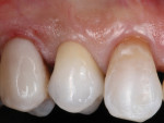The definitive restoration is cemented with a resin-modified glass-ionomer cement. This cement provides good retention but remains slightly soluble should any cement be retained subgingivally.