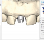 A digitally-designed ATLANTIS Abutment.