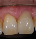 The final result—healthy soft tissue and an esthetic emergence profile.