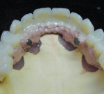 The veneers are bonded to the metal overcasting with Combo.lign.