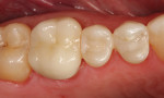 Figure 6. After picture of a SonicFill restoration that was place by one of the author's expanded-duty dental assistants.
