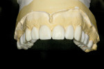 Figure 5 Maxillary diagnostic wax-up.