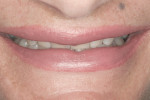 Figure 4 Full smile with minimal display of teeth.