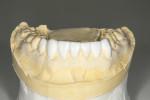 Figure 6 Mandibular diagnostic wax-up.