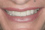 Figure 15 Smile view of completed restorations.