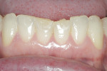 Figure 5 Lower incisors showed both thinning and significant shortening due to the constricted chewing pattern.