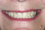 Figure 8 Full smile, demonstrating gingival papilla but not the gingival zeniths of the anterior teeth.