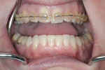 Figure 11 After advancement of upper incisors was accomplished, direct resin was placed as a transitional material to aid in the completion of orthodontic alignment.