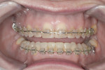 Figure 12 Completion of orthodontic alignment, after placement of brackets on the transitional bonding.