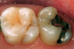 Figure 11  Preoperative condition of tooth No.15.