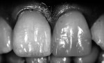 Figure 10. Close-up view of the proposed shade with the patient's dentition in black and white.