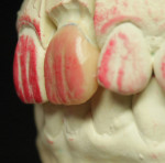 Figure 13. The left lateral view of the wax-up was evaluated to determine correct reflective and deflective zones.