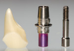 Figure 20. CAD/CAM ceramic abutment (with a bonding base).