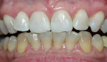 Figure 2  Crest® Whitestrips® used for tetracyclinestained teeth. The lower arch was used as a control.