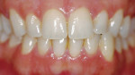 Figure 4a  Pretreatment view using an OTC, light-activated tooth whitening system.