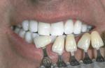Figure 3 Educate patient with extremely white teeth in contrast to light shades of the vita classical shade guide.