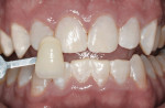 Figure 9 Patient at 1-week post-whitening.