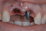 Tooth No. 8 was extracted and the implant was placed.