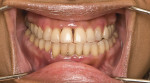 Fig 4 Pre-whitening view of a middle-aged female patient who presented with generalized tooth discoloration. Additionally, the patient showed signs of moderate to severe gingivitis but declined treatment for this condition.