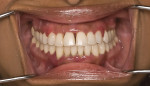 Fig 5 Pre-whitening view of a middle-aged female patient who presented with generalized tooth discoloration. Additionally, the patient showed signs of moderate to severe gingivitis but declined treatment for this condition.