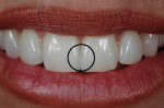 Figure 3  The small circle represents the circle seen in the viewfinder of the camera in spot metering mode. It should be positioned over the teeth as shown to expose the image.
