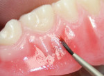 Characterizing the denture base with Ceramage Gum colors.