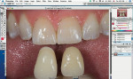 Figure 20  The shade image with the teeth to be matched and the shade guides selected with one of Photoshop's selection tools.