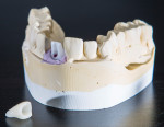 Figure 4. Finished abutment and zirconia crown.