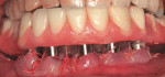 Figure 8  The interim complete denture is secured to the immediate implants 4 hours into the appointment.
