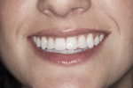 Figure 1 Pretreatment full-smile photo.