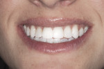 Figure 2  Full-smile photo after treatment reveals the smooth texture and natural appearance of the translucent varnish on the teeth.