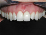Figure 7 Clinical photograph of maxillary left central incisor implant replacement. CAD/CAM zirconium abutment and zirconium ceramic crown restoration demonstrate ideal esthetics in the smooth/scalloped gingival biotype patient.