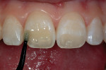 Figure 9  The prepared enamel and dentin was saturated with bonding resin.