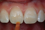 Figure 15  A white composite tint was placed on top of the cured dentin layer and cured before placement of the enamel layer.