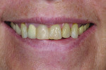 Figure 1 Preoperative smile showing broken, discolored teeth with acceptable gingival levels and incisal edge position of maxillary centrals.