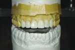 Figure 3 Following occlusal equilibration, a diagnostic wax-up was completed on a semi-adjustable articulator.