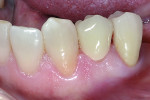 Figure 13 Completed case after cementation with Ceramir® Crown & Bridge Cement.