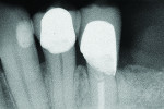Figure 14 Final radiograph of tooth No. 21 layered zirconia crown.