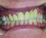 "Figure 1 A 45-year-old female patient who had a history of cleft palate surgical correction presented with a six-unit maxillary anterior bridge that had become discolored and had exposed metal margins. The length of the teeth did not match on both sides when the patient smiled. Her smile line had a ""half-moon"" shape, and the midline cant was slanted to the left side."