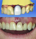 Figure 9 The temporary crown was designed using CEREC software. The gingival embrasures were intentionally left open to facilitate healing.