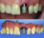Figure 10 After 6 months of healing, a CEREC ScanPost (Sirona Dental, Inc.) was used to image the implant digitally.