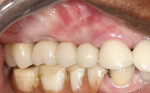 Figure 10 The definitive restoration—a screw-retained porcelainfused- to-zirconia FPD—in place.